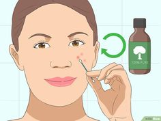 We will talk about the best acne treatment and common mistakes that can make. 60 million Americans are victims of skin diseases like acne breakouts and we. Oils For Scars, Oils For Skin, Huile Tea Tree, Best Eye Serum, Tea Tree Oil For Acne, Bad Acne, Acne Mask, Acne Spot Treatment, Acne Spots