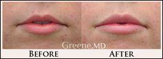 Natural lip augmentation by Dr. Ryan Greene