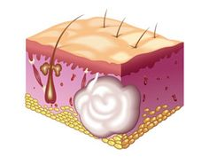 Skin Boils that Affect Your Life
