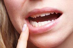 Răng lung lay và đau – Cách xử lý đúng và đảm bảo an toàn nhất