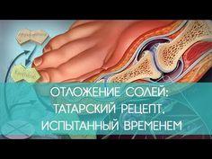 ОТЛОЖЕНИЕ СОЛЕЙ: ТАТАРСКИй РЕЦЕПТ, ИСПЫТАННЫЙ ВРЕМЕНЕМ   ECONET.RU - YouTube