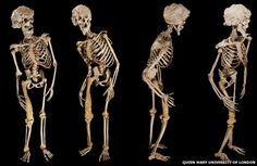 The Elephant Man, Joseph Merrick, was an object of curiosity and ridicule throughout his life - studied, prodded and examined by the Victorian medical establishment. Now, 123 years after his death, scientists believe his bones contain secrets about his condition which could benefit medical science today.