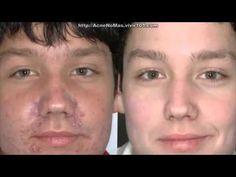 Tratamiento Para El Acné En La Cara - Como Eliminar Las Cicatrices Del Acné De Forma Natural - http://solucionparaelacne.org/blog/tratamiento-para-el-acne-en-la-cara-como-eliminar-las-cicatrices-del-acne-de-forma-natural/