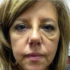 INSTANTLY AGELESS™  Look what happens in 2 minutes. Get Your FREE 3 Day Sample just send me your email request ... go to https://evy.jeunesseglobal.com/en-US/get-in-touch