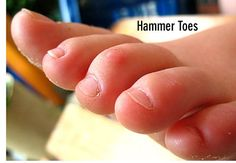 A hammer toe is a toe that is contracted at the middle joint in the toe, potentially leading to severe pressure and pain. http://www.kazmerfootandanklecenters.com/services/hammer-toes