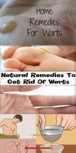 5 Straight forward Household Remedies To have Rid Of Skin Warts Home Remedies For Warts, Natural Cough Remedies, Cold Remedies, Natural Cures, Natural Health, Herbal Remedies, Health Remedies, Holistic Remedies, Warts On Hands