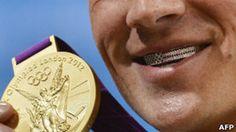 ¿Qué tiene Ryan Lochte en los dientes? ¿Es sano?