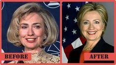 Hillary Clinton Plastic Surgery - The Story So Far #HillaryClintonPlasticSurgery #HillaryClinton #celebritypost