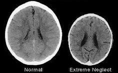 Images of the brains of two three-year-old children clearly showing the effects of neglect