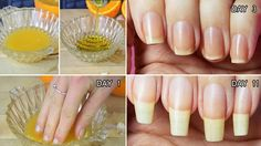 Effective And Fast Nail Growth With These Natural Home Remedies. The nails have a protein called keratin. The toe nails usually develop faster than the finge. Nail Growth Faster, Nail Growth Tips, Grow Nails Faster, How To Grow Nails, Grow Long Nails, Toenail Fungus Remedies, Toenail Fungus Treatment, Nail Treatment, Nail Polish