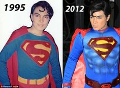 This Man Underwent 23 Surgeries For The #Superman Look