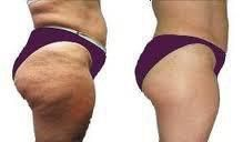 Do you want to remove cellulite in less than 72hours? Learn more click on the picture!
