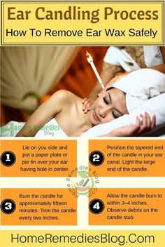 Ear Candling Step by Step Guidelines - Infographics Unclog Ears, Ear Wax Buildup, Ear Candling, Ear Wax Removal, Dry Skin Remedies, Ear Cleaning, Natural Home Remedies, Skin Problems, Skin Care Tips