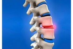 Exercises for a Bulging Disc in the Lower Back | eHow