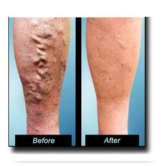 #Varicose #veins treatment - http://www.usaveinclinics.com/