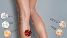 How Cellulite Forms (And What To Do About It)