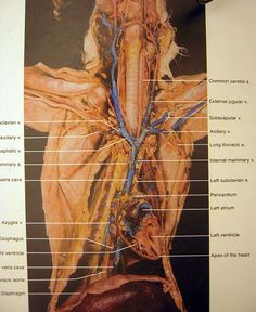 Cat dissection arteries arteries and veins of appendages and cat dissection flickr photo sharing freerunsca Images