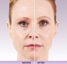"""#Juvederm  is a great option if you are looking to treat lines and wrinkles but is especially popular for nasolabial folds, or """"smile lines"""". As we age, these lines become deeper and more pronounced. Juvederm can be used to lessen the appearance of these lines, thus potentially causing years to fall off your face.  #drmeldaisaac #dermatologyleader #dermalfillers #motivationmonday #washingtondc #dermatology #skincare"""