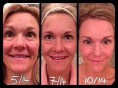 "Check out what Carrie, has to say about her amazing R+F results!   ""This is me...YIKES!!! My face has come along way since beginning Rodan + Fields back in May until now!! My skin just continues to get better! No make up in any of these photos and I am foundation free!! Woo hoo!""  Are YOU ready for skin that looks and feels younger?  My Saturday SPECIAL starts NOW!!  The next 3 PC's get an eye cream as a gift from me! barbaramccarty.myrandf.com HURRY!"