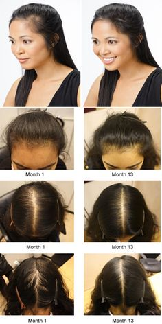 Hair Loss in Women Causes and Symptoms
