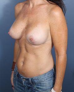 Breast Augmentation 405601
