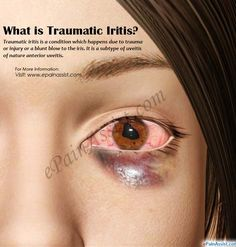 What is Traumatic Iritis Eye Pain, Optometry, Trauma, Disorders, Clinic, Eyeglasses, Helpful Hints, Tech, Training