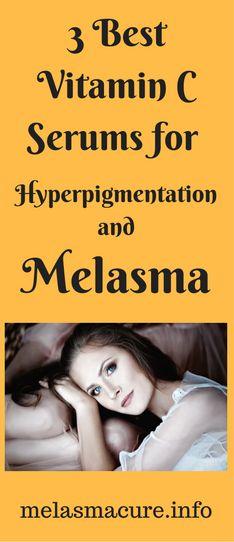 3 Best Vitamin C Serums for Hyperpigmentation and Melasma – Melasma Cure Best Vitamin C Serum, Vitamin C For Face, Organic Vitamins, Hair Serum, Good Skin, The Cure, Skin Care, Vitamin E