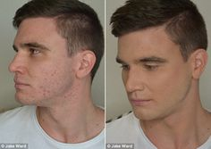 How to hide spots naturally.  http://www.mensmake-up.co.uk/blog/how-to-hide-mens-spots-with-natural-makeup-for-men/