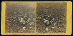 Dead Confederate soldier at Antietam, photographed by Alexander Gardner, circa Sept 1862. #civilwar