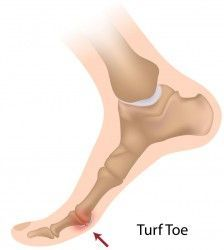 What Is Turf Toe Anyway: Common Sports Injuries Explained. common soccer injuries, soccer injury care