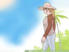 How to Get Rid of White Spots on the Skin Due to Sun Poisoning Dark Skin Tone, Tan Skin, Sun Spots On Skin, Dark Spots, How To Get Rid, Hair And Nails, Anime, Dark Stains, Cartoon Movies