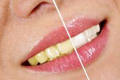 Consejos para Evitar los Dientes Manchados A menudo los dientes... Siguenos en Mi Canal: http://www.youtube.com/c/AmiraSaludyBelleza