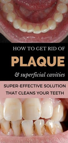 How to get rid of plaque and superficial cavities at home - Super-effective solution that cleans your teeth.