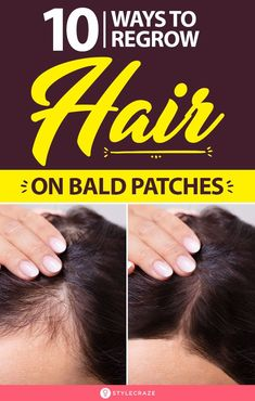 10 Ways To Regrow Hair On Bald Patches: While it is common in males, a small population of women too deals with this hair issue. We have compiled a few simple home remedies that have been scientifically proven to promote hair growth. Home Remedies For Baldness, Hair Growth Home Remedies, Home Remedies For Hair, Hair Loss Remedies, Natural Remedies, Baby Hair Growth, New Hair Growth, Hair Growth Cycle, Oil For Hair Loss