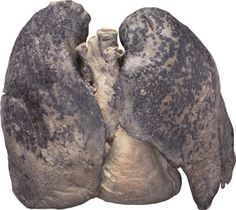 Smoker's lungs, I seen this when I was in the 8th grade; this is the reason I never smoked!