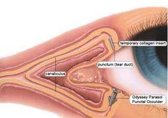 Dry Eyes in Colorado Springs - Ocular Disease eye doctor Dry Eye Remedies, Optometry School, Medical School, Opthalmic Technician, Prescription Eye Drops, Chronic Dry Eye, Cosplay Contacts, Eye Pain