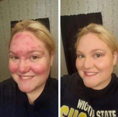 Younique before and after. youniqueproducts.com/AnnaLee