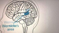 PSA Broca's Aphasia & Wernicke's Aphasia. Stockton University. Communication Disorders Program class of 2015