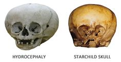 The Starchild Project - The Home of Research for the Starchild Skull
