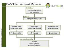 Internal Medicine Boards: PVCs' Effect on Heart Murmurs Aortic Stenosis, Heart Murmur, Heart Rhythms, Board Exam, Rn Nurse, Nursing Notes, Internal Medicine, Cardiology, Nclex