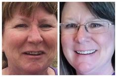 What a difference a year makes! Tammy Frith's sensitive skin condition left her with a dry red complexion. She used Soothe Redefine PM Cream & Eye Cream. Get started for your best skin! #RFresh