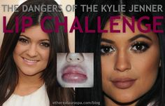 The Dangers of the Kylie Jenner Lip Challenge #KylieJennerChallenge http://etherealauraspa.com/blog