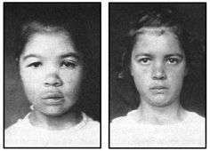 Historical Before and After Photos of Hypothyroid Patients