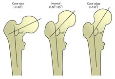 Coxa valga describes a deformity of the hip where there is an increased angle between the femoral neck and femoral shaft. Pathology Coxa valga is often associated with shallow acetabular angles and femoral head subluxation. Oral Pathology, Hip Mobility, Bone Diseases, Hip Openers, Bone And Joint, Anatomy And Physiology, Head And Neck, Nursing Students, Physical Therapy