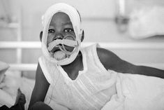Northern Uganda. Child mutilated by Lord's Resistance Army