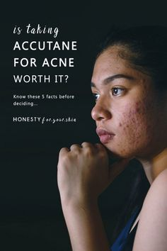 Is Accutane Worth It? Is It Bad to Take Accutane for Acne? Acne Skin, Oily Skin, Sensitive Skin, Best Acne Treatment, Acne Treatments, Glow Skin, Pimples On Face, Clear Skin Tips, Skincare Blog
