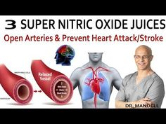 Heart Healthy Lifestyle Tips To Help You Get In Better Shape Natural Remedies For Uti, Prevent Heart Attack, Brain System, Gambling Addiction, Healthy Lifestyle Tips, Cardiovascular Disease, Blood Vessels, Heart Health, Never Too Late