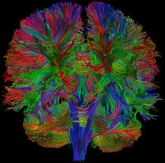 science is beauty - diffusion tensor imaging of the brain