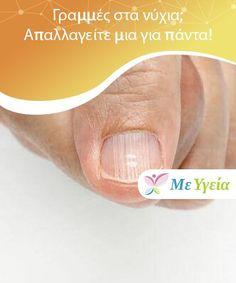 Γραμμές στα νύχια; Απαλλαγείτε μια για πάντα!  Αν και συνήθως οι γραμμές που εμφανίζονται στα νύχια συνδέονται με τραυματισμό ή διατροφική έλλειψη, μπορεί να σχετίζονται και με σοβαρά προβλήματα υγείας, που δεν έχουμε ίσως αντιληφθεί. Health Remedies, Pain Relief, Natural Remedies, Healing, Medical, Herbs, Tips, Beauty, Woman