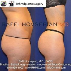 Repost from @rhmdplasticsurgery  Another amazing Body Transformation by plastic surgeon Dr. Raffi Hovsepian! This patient of Dr. Hovsepian underwent Dr. Hovsepian's Advanced Liposuction Technique with Full Body Sculpting and Buttock Augmentation (Brazilian Butt Lift) using her own fat.